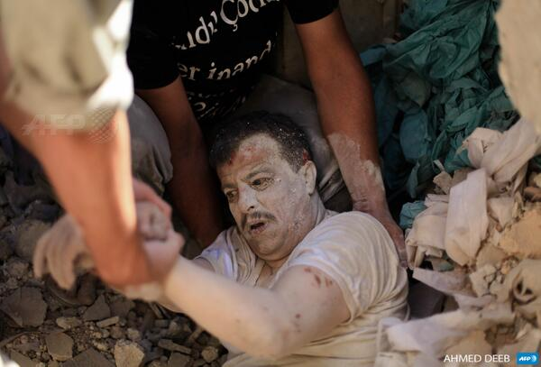 Man Rescued After Barrel-Bombing in Aleppo - AFP